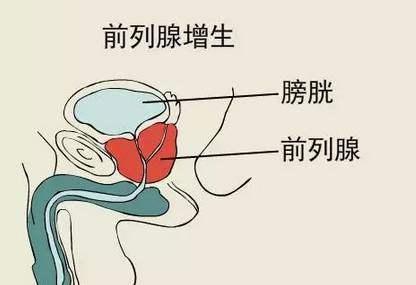 前列腺增生.jpg