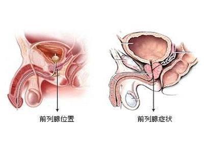 前列腺结症状和原因是什么?吃什么药可以治疗?