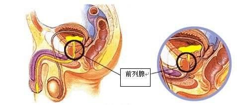 前列腺复发